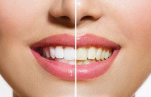 Гигиена зубов как способ профилактики заболеваний